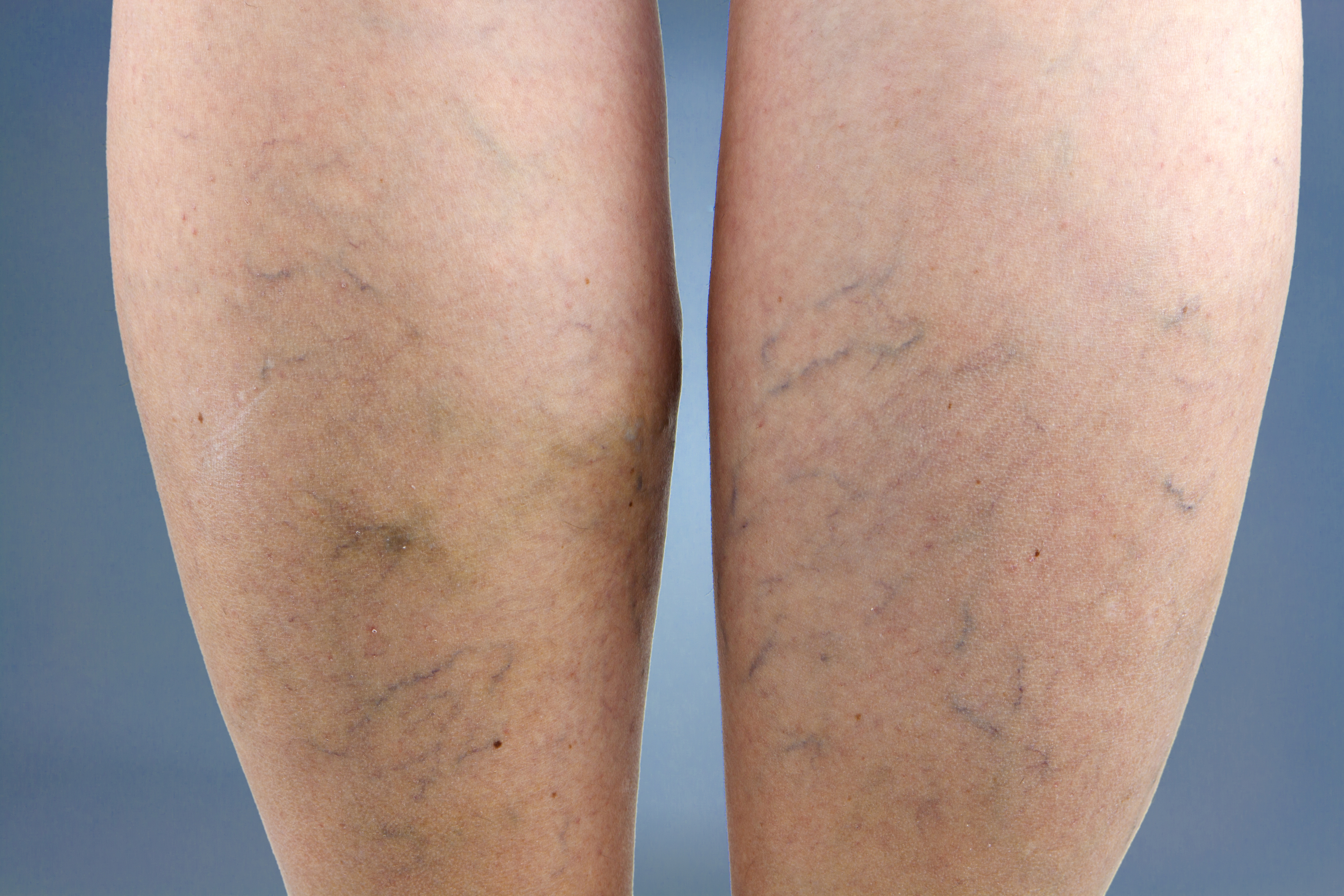 Everything You Need To Know About Varicose Veins In Pregnancy-4628