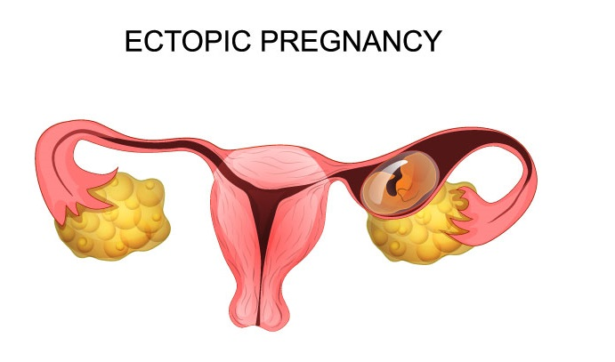 All About Ectopic Pregnancy