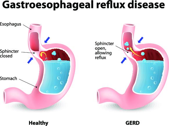 Gastroesophageal Reflux Pregnancy