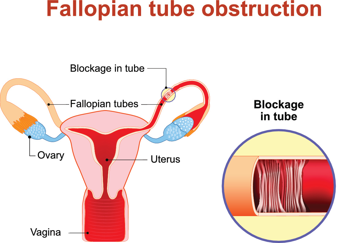 Blocked Or Damaged Fallopian Tubes Causes And Treatment The Pulse