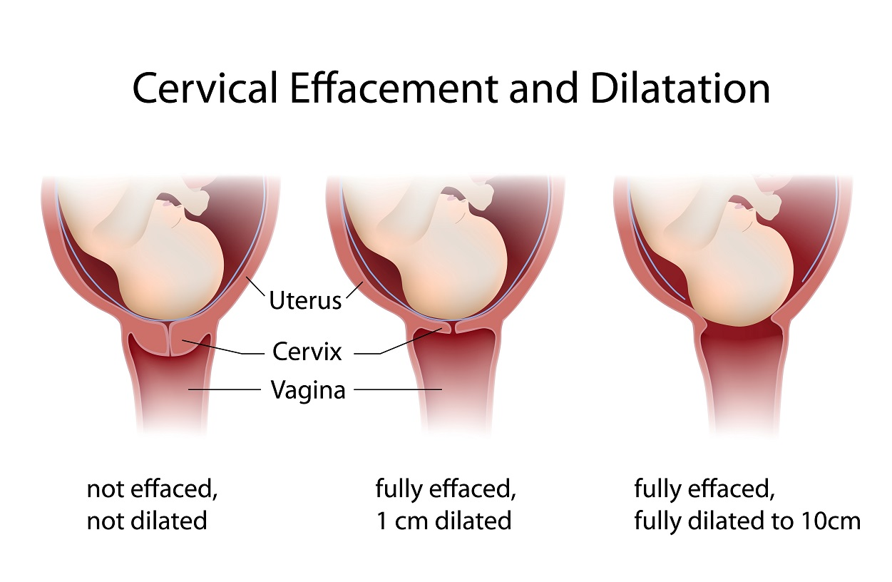 How does the cervix behave during pregnancy Is it dangerous to open the cervix 8