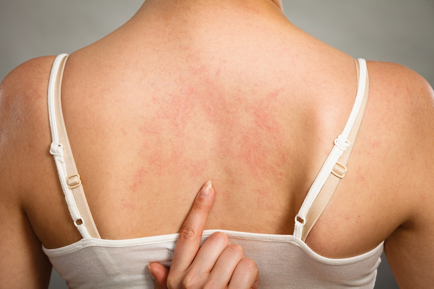 Eczema During Pregnancy >> Is Pregnancy Making My Eczema Worse The Pulse